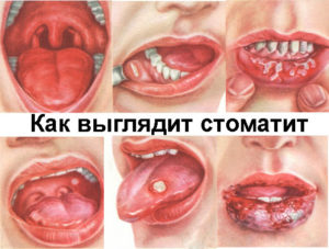Стоматит