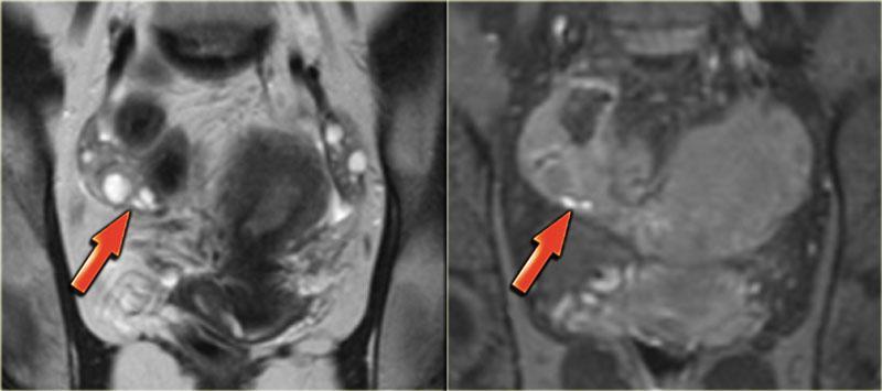 Эндометриоз на МРТ: как проходит обследование, что выявляет