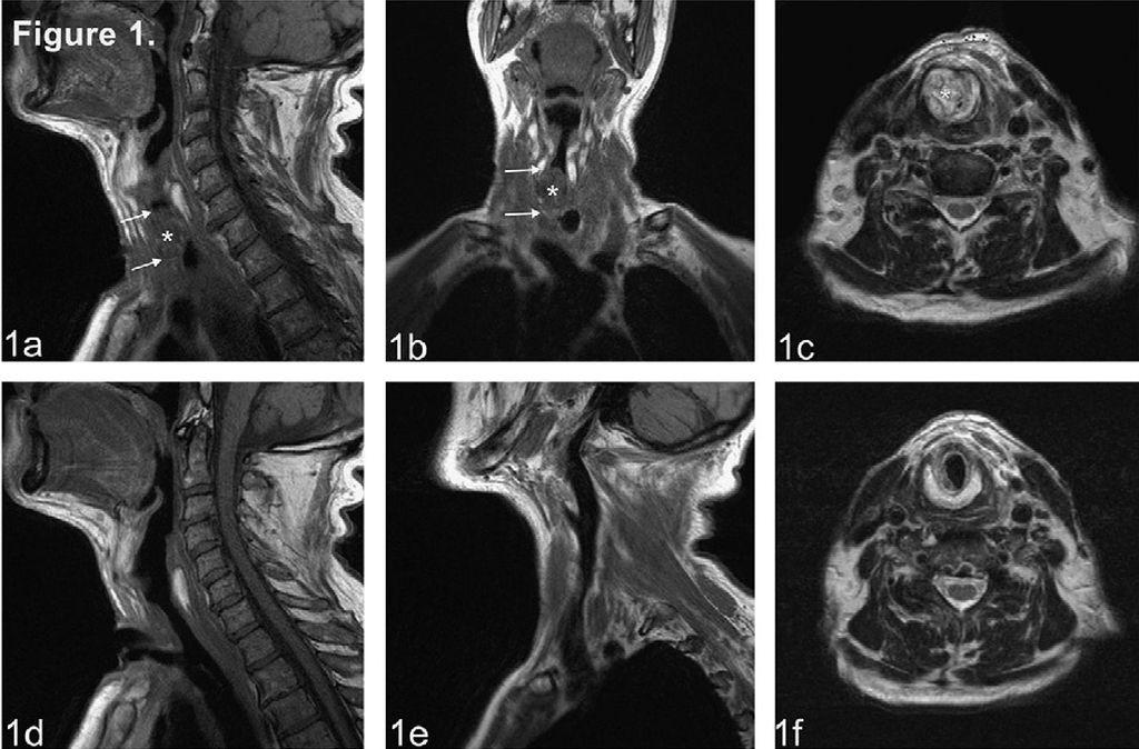 Магнитно-резонансная томография горла, гортани: показания, противопоказания, проведение