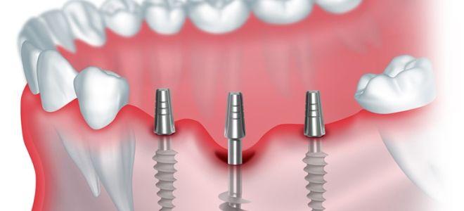 Особенности КТ для имплантации зубов, ее преимущества, противопоказания