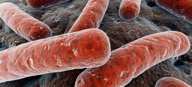 Как выглядит туберкулез на рентгене