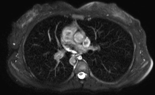 Снимок МРТ средостения
