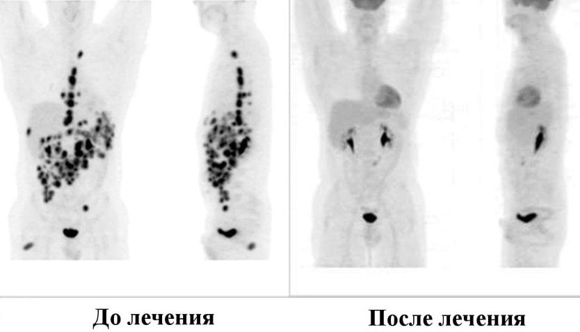 Позитронно-эмиссионная/компьютерная томография: преимущества, подготовка, диагностика