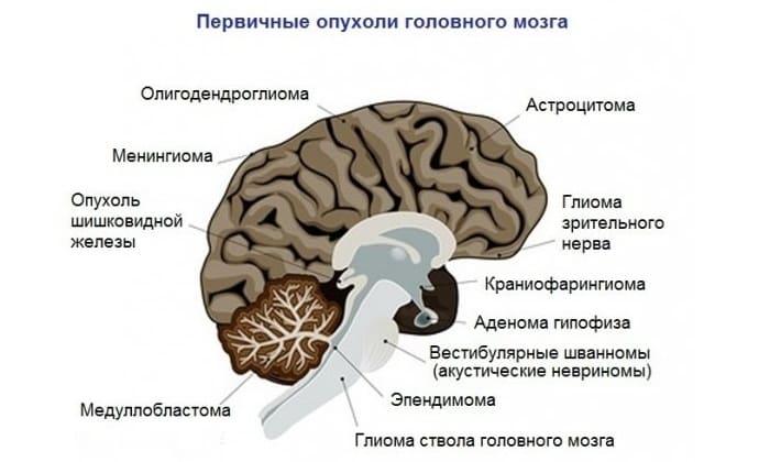 МРТ при опухолях головного мозга: классификации, снимки
