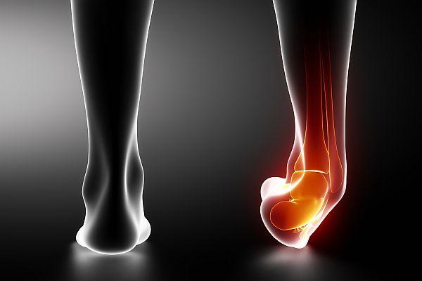 МР-диагностика повреждений стопы