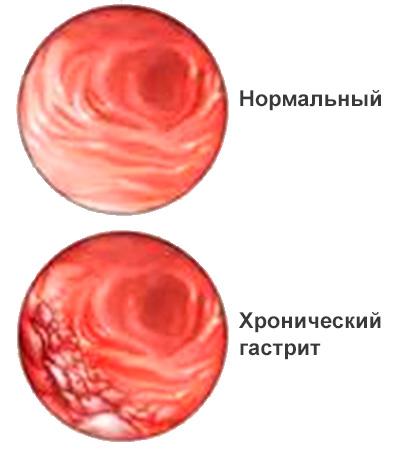 Хронический гастрит симптомы и лечение