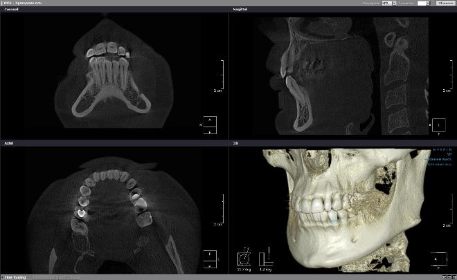 Снимок КТ челюсти