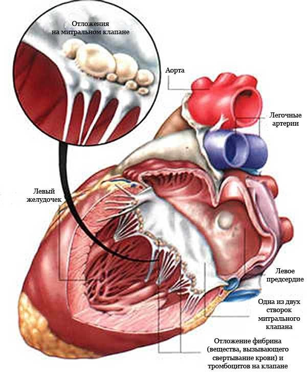 Ревматический эндокардит