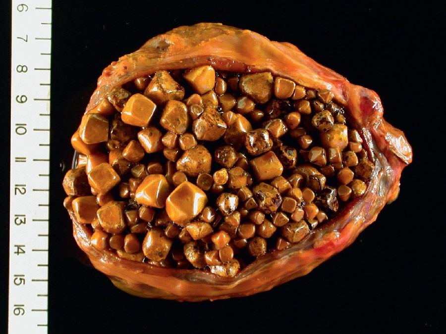 Холестериновые камни в желчном пузыре фото машины были