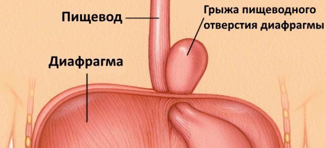 Грыжа пищевода: симптомы и способы лечения