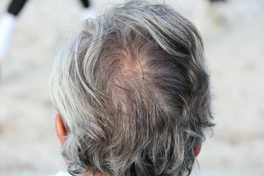 Очаговое выпадение волос у мужчин и женщин: лечение, симптомы, советы экспертов