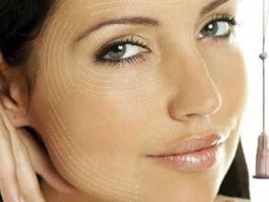 жидкие нити для подтяжки лица - современный метод омоложения