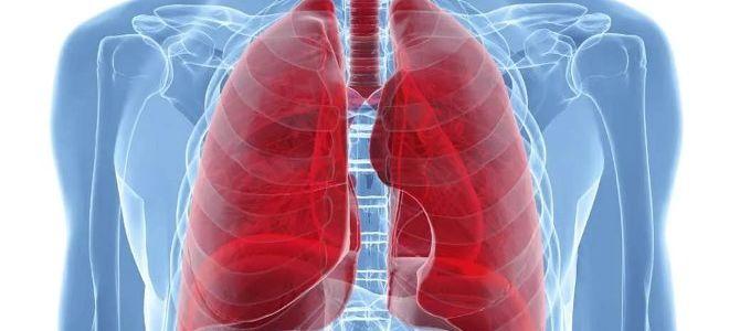 Может ли показать флюорография воспаление легких