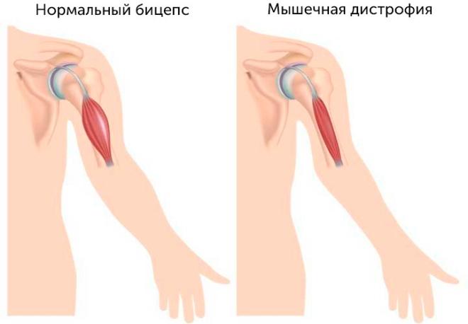 Что такое мышечная дистрофия