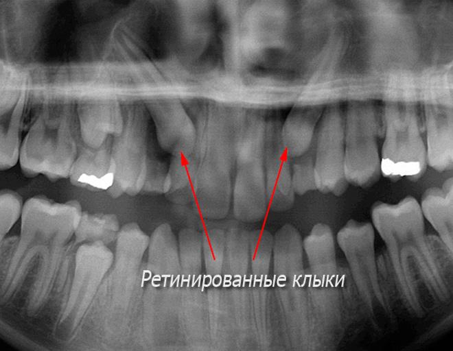 Одонтогенный гайморит опасное последствие кариеса зубов