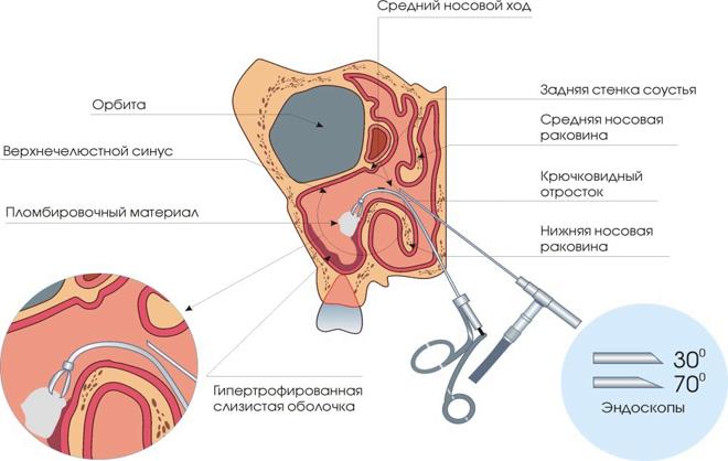 Лечение кисты гайморовой пазухи: классическое, эндоскопическое и безоперационное лечение.
