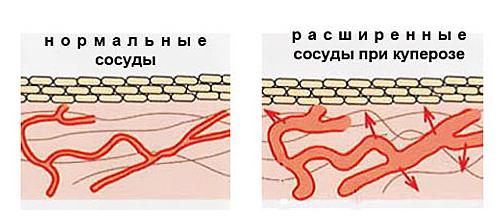 Возникновение купероза