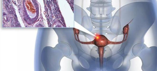 Можно ли увидеть рак матки на УЗИ?