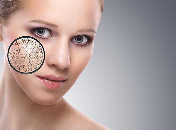 Как избавиться от шелушения кожи на лице
