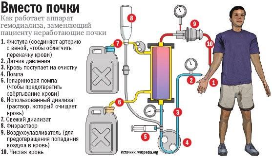 Схематическое изображение диализного аппарата