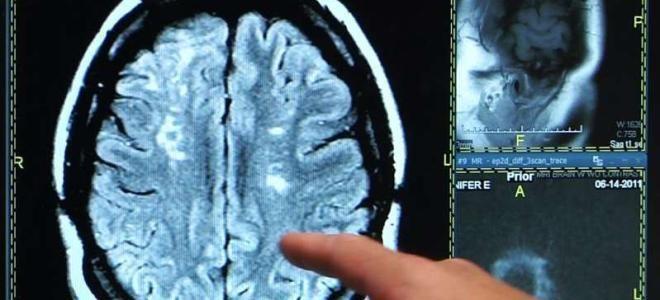 Виды и расшифровка МРТ при инсульте