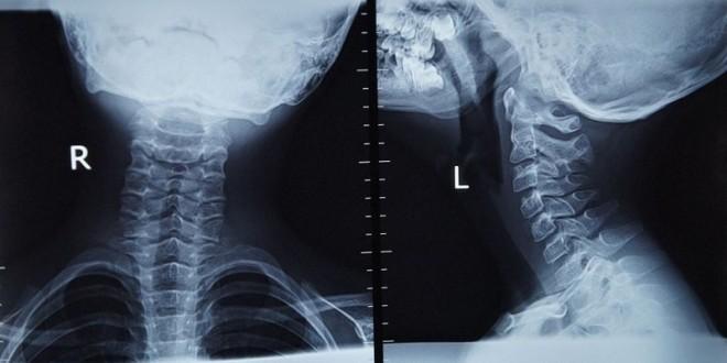 Снимок шейного отдела позвоночника