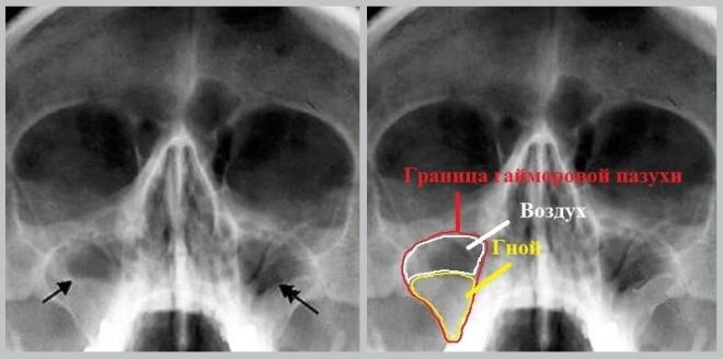 Гайморит на снимке рентгена носа