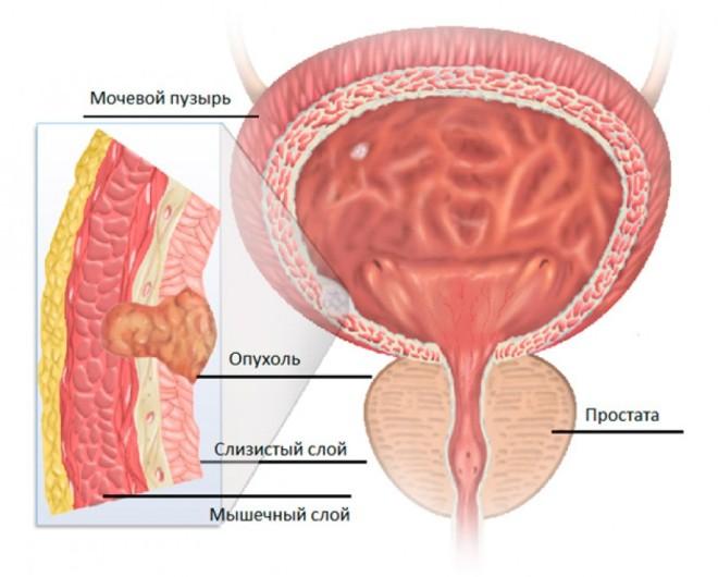 Опухоль в мочевом пузыре