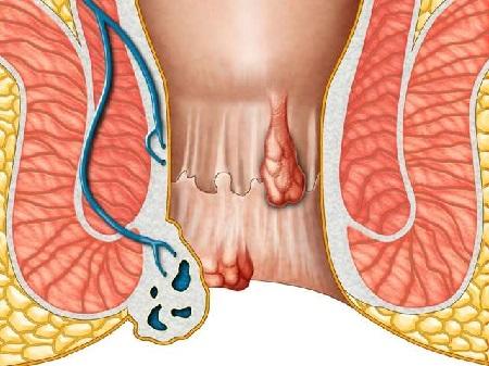 Геморрой при беременности 3 триместр