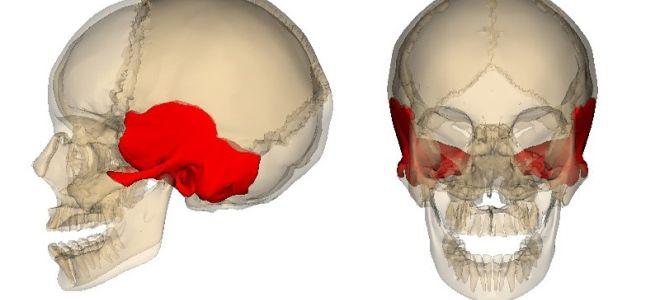 Показания и методика проведения КТ височных костей