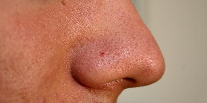 Причины пористой кожи на лице