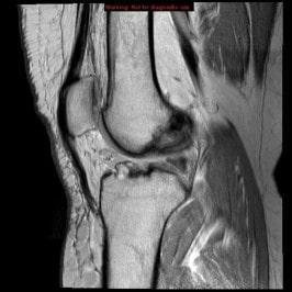 На сколько эффективно МРТ при диагностики суставов