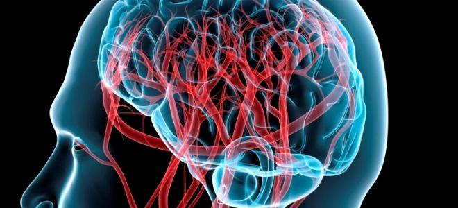 Диагностика мозга методом МРТ ангиографии