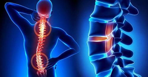 Остеохондроз что это такое и как лечить?