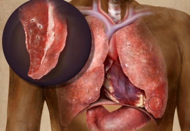 Пораженные туберкулезом легкое