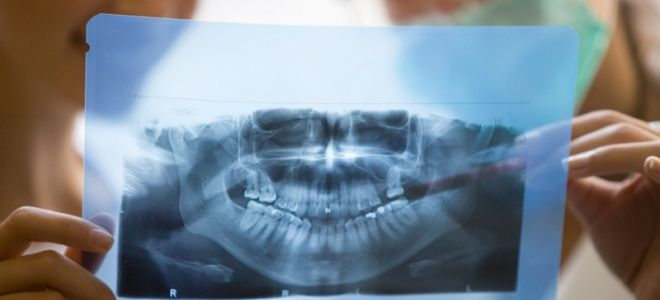 В каких случаях необходим рентген челюсти