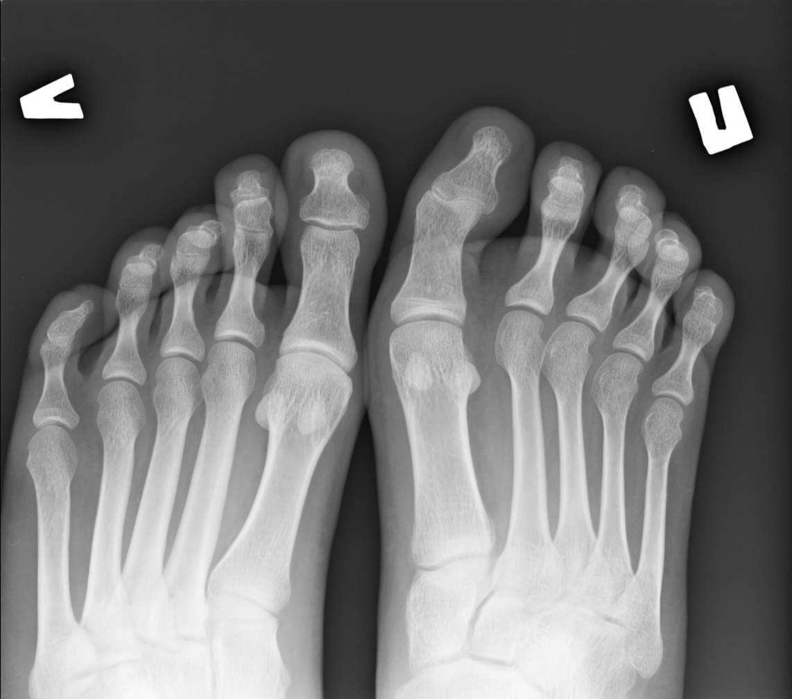Рентгенологические стадии ревматоидного артрита