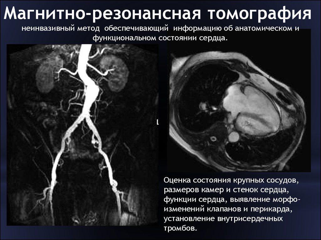 Отличие МСКТ от МРТ