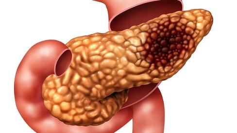 Панкреатит: симптомы, лечение и диета при панкреатите