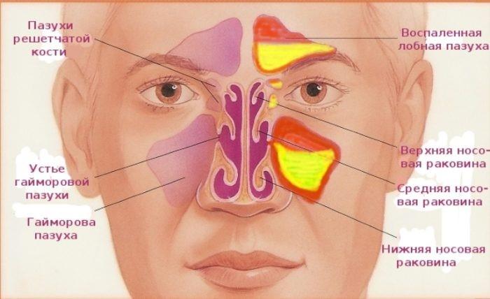 Рентген является наиболее распространенным методом исследования пазух носа