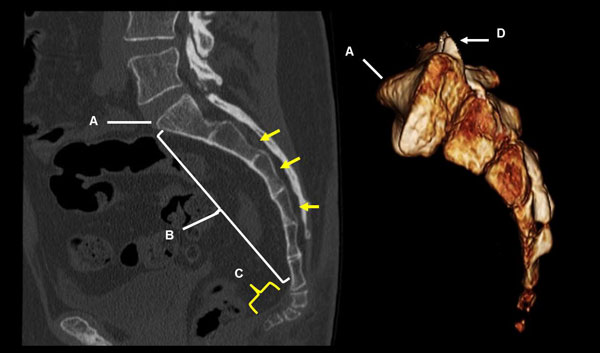 Рентген копчика: особенности проведения диагностики