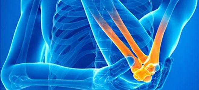 Метод рентгена локтевого сустава