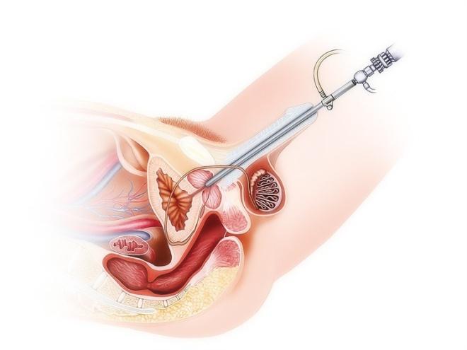 Трансуретральный метод УЗИ мочевого пузыря