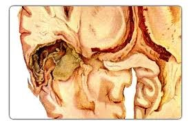 Разложение ткани мозга.