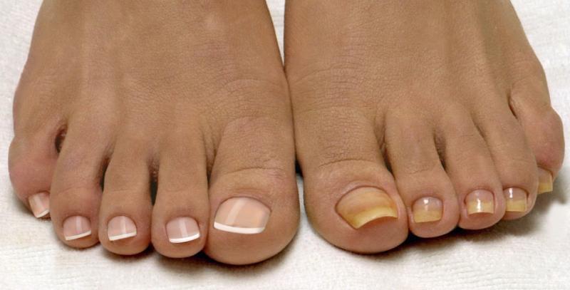 Ванночки для ног от грибка противогрибковые домашние средства