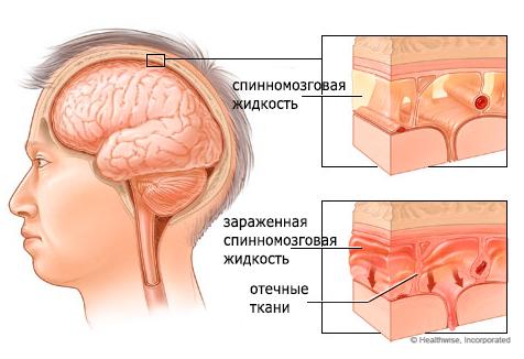 Серозный менингит симптомы и лечение