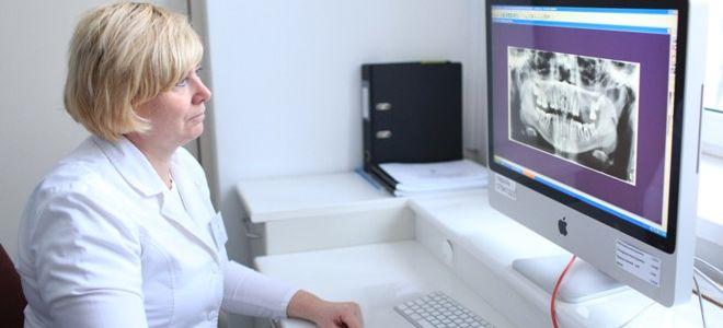 Особенности проведения снимков челюсти