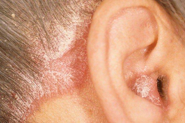 причины возникновения перхоти на бровях и в ушах