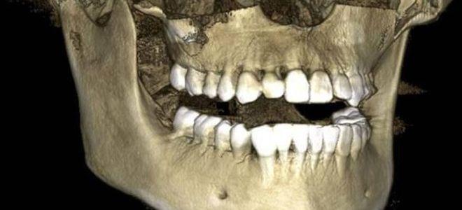 Подготовка и проведение 3Д-снимков зубов
