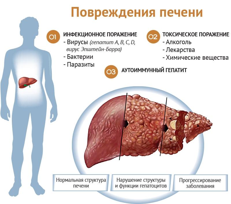 МРТ печени и желчевыводящих путей: показания к проведению процедуры